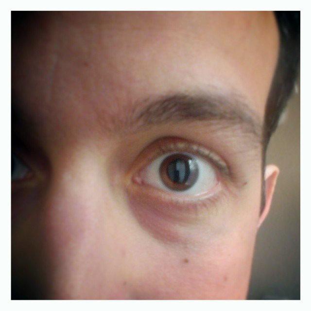 Pupilla tágítás után :)